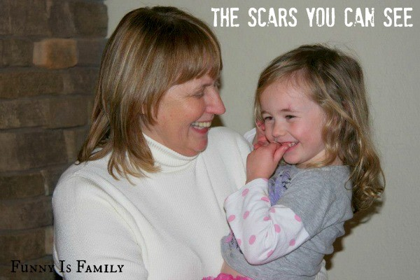 The Scars You Can See